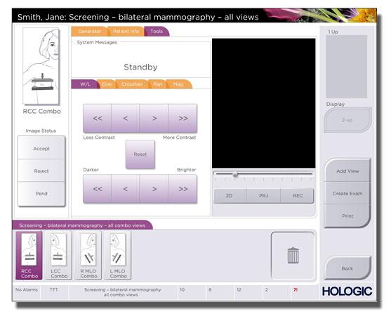 Hologic GUI-1