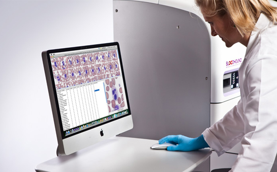 Constitution Medical Bloodhound Integrated Hematology Analyzer 2